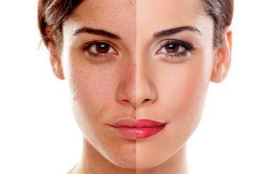 proprietà ed utilizzi della crema antimacchie per il viso