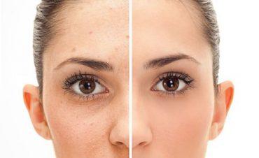 come scegliere la crema contro le macchie del viso