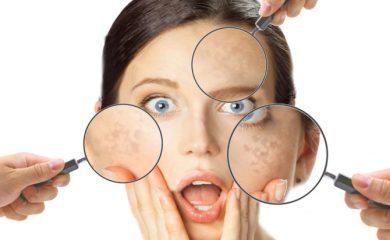 spiegazione e consigli per combattere l'iperpigmentazione