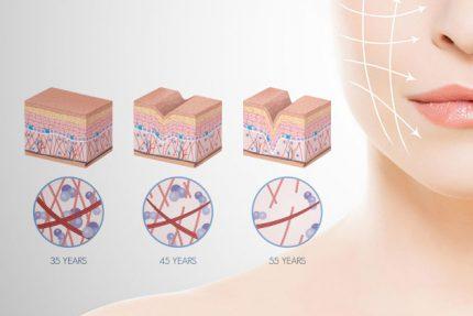 benefici del collagene sulla pelle