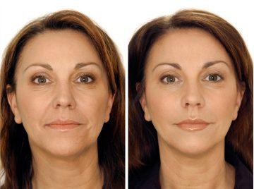 benefici siero antirughe sul viso