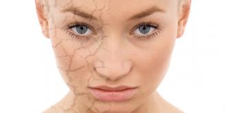 esempio di pelle secca