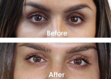 risultati delle utilizzatrici di Kiehl's Creamy Eye Treatment with Avocado