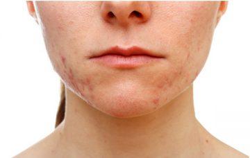 acne per squilibrio ormonale