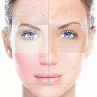 tipologie di pelle e rimedi
